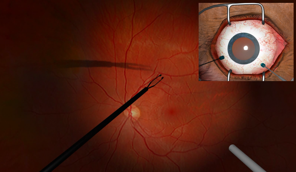 Simulation of a cataract removal surgery, via the software developed by InSimo