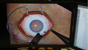 Simulating a cataract removal surgery, via the simulator software developed by InSimo