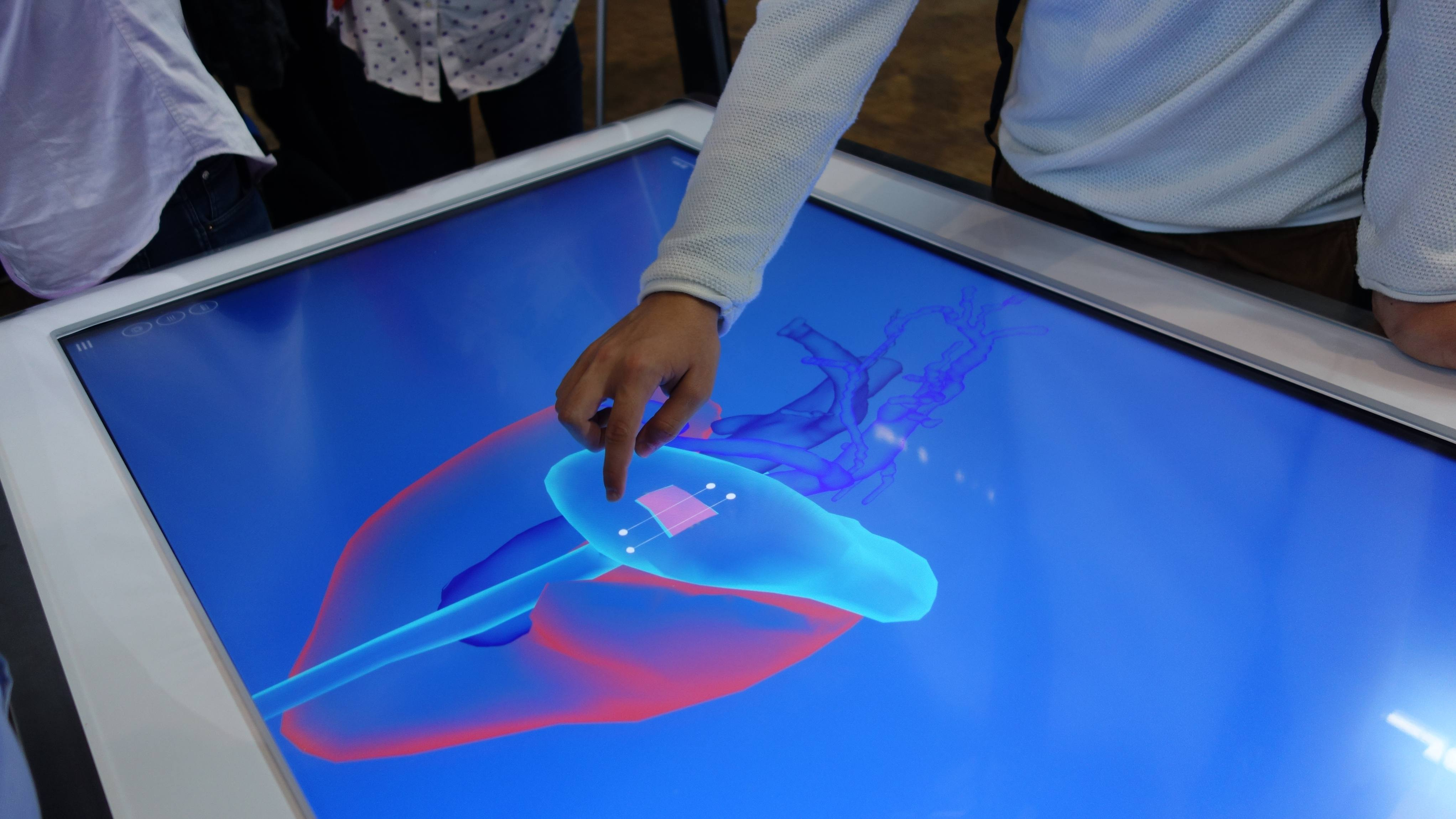 Simulation of a suture on a virtual stomach on diSplay Learning